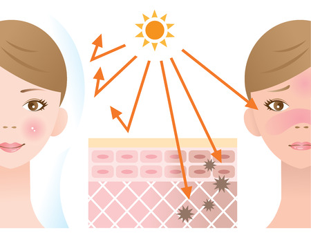 infographic skin illustration of UV protection sunscreen before and after. skin care and beauty concept