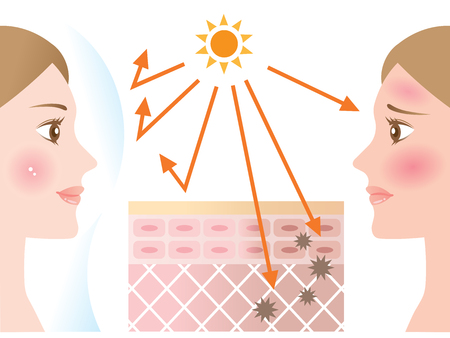 young woman applying sunscreen to her face protects her skin from uv rays and the other woman without wearing sunscreen damages her skin. skin diagram showing effects of sunscreen Çizim