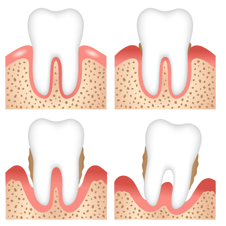 human teeth of gingivitis and periodontal illustration. plaque control prevention and health care concept Çizim