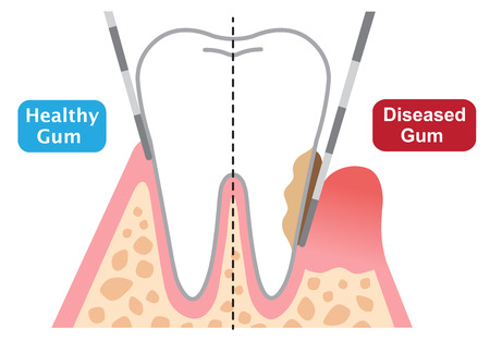 human teeth of gum disease and normal teeth illustration isolated on white background