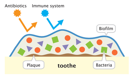 biofilm is made up of bacteria in which cells stick to each other to a surface on teeth. It is less accessible to antibiotics and human immune system