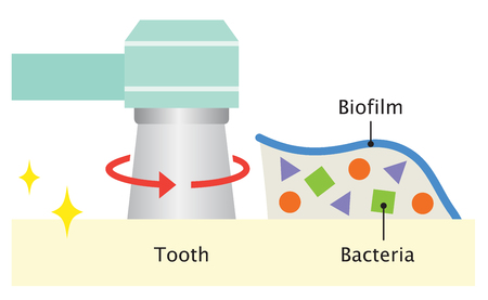 tooth cleaning keeps the biofilm under control and supports a better oral health Illustration