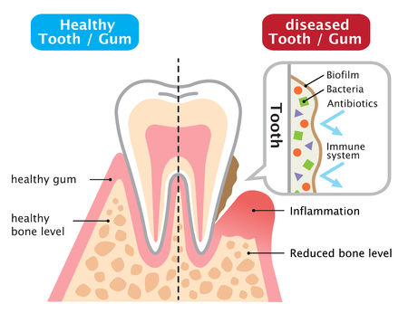 human teeth of gum disease with biofilm and normal teeth illustration isolated on white background