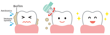 professional tooth cleaning remove biofilm. oral hygiene illustration before and after illustration isolated illustration on white background