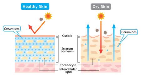 La piel sana contiene ceramidas que producen una apariencia húmeda, la piel seca tiene menos ceramidas que dan lugar a una barrera cutánea dañada, provocando piel seca. Ilustración de cuidado de la piel aislada sobre fondo blanco