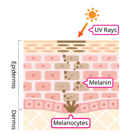 skin mechanism of melanin and facial dark spots. Infographic human skin layer illustration. Beauty and skin care concept Illustration