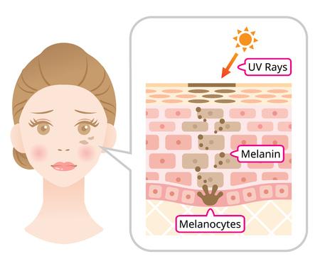 mecanismo cutáneo de la melanina y las manchas oscuras faciales. Ilustración infográfica de cara de mujer y capa de piel. Concepto de cuidado de la piel de belleza