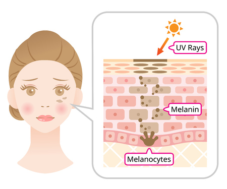 skin mechanism of melanin and facial dark spots. Infographic illustration of woman face and skin layer. Beauty skin care concept Illustration
