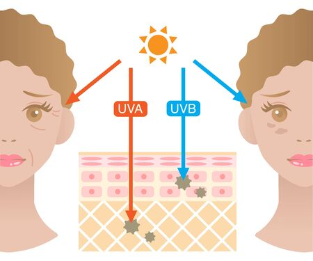 Infographic illustration of difference between UVA and UVB rays. UV penetration into human skin and woman face. skin care and beauty concept 向量圖像