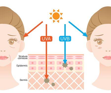 skin layer illustrationn of UVA rays penetrate deep into the dermis causing winkle. UVB rays damage the epidermis to produce sunburn Illustration