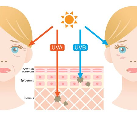 skin layer illustrationn of UVA rays penetrate deep into the dermis causing winkle. UVB rays damage the epidermis to produce sunburn Illustration