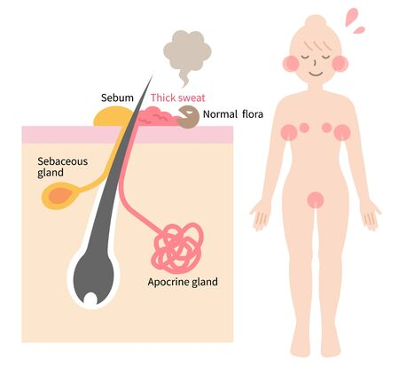 Body odor is caused by bacteria breaking down sweat from apocrine glands. skin layer and woman body illustration. Isolated on white background Vektorgrafik