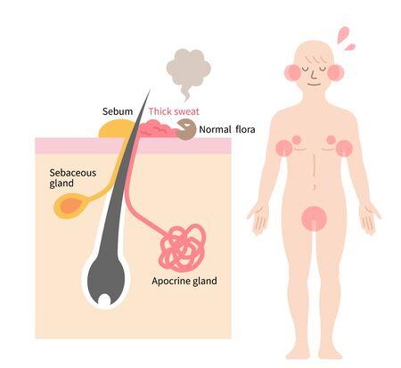 Körpergeruch wird durch Bakterien verursacht, die Schweiß aus apokrinen Drüsen abbauen. Hautschicht und Mannkörperillustration. Isoliert auf weißem Hintergrund