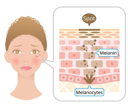 Human skin layer with facial spot anatomy. Diagram of Melanin and melans in human skin. Beauty and skin care concept Ilustrace