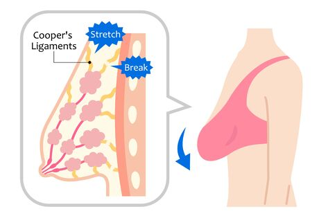 diagram of sagging breasts and woman's body illustration. beauty body and health care concept Illustration