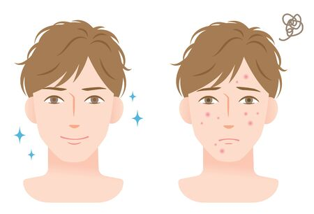 acne skin care before and after male face. Isolated on white background Illustration