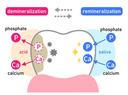 diagram of tooth demineralization and remineralization. Dental care concept 일러스트