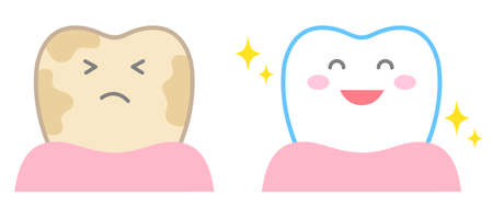 tooth whitening cute cartoon before and after illustration. Dental care concept Çizim