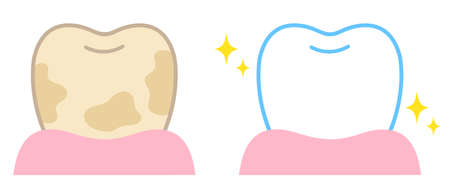 tooth whitening before and after illustration. Dental care concept