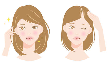 hair parting thinning woman before after illustration. hair care and beauty concept