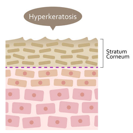 Hyperkeratosis is thickening of Keratin in Epidermis. Health and beauty skin care illustration