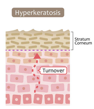 diagram of skin cell turnover and thickening of the stratum corneum. Skin care and beauty concept
