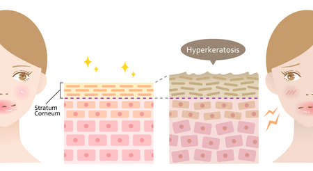 Hyperkeratosis is thickening of Keratin in Epidermis. Female face and skin layer. Health and beauty skin care illustration