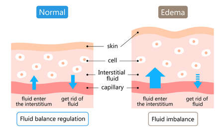 diagram of Edema and normal skin. swelling is caused by excess fluid within the tissues of the body. Before after illustration. Health care concept 矢量图像
