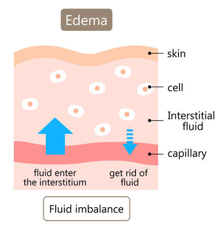 diagram of edema skin illustration.   swelling is caused by excess fluid within the tissues of the body. Health care concept