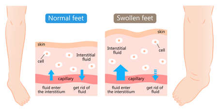 swollen and normal feet with skin diagram. swelling is caused by excess fluid within the tissues of the body. Before after illustration. Health care concept 矢量图像