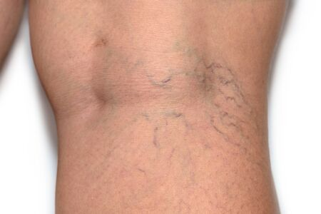 Close up varicose spider vein on skin crook leg elderly woman, Problem thrombosis that can cause blood vessel to clot, Vascular and venous diseases, Health care before the doctor on white background