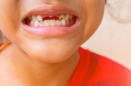Vulnerability from tooth loss and Unattractive teeth of children