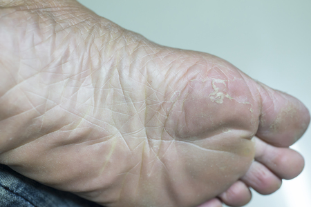 Dry skin that is peeling off the feet. Banco de Imagens