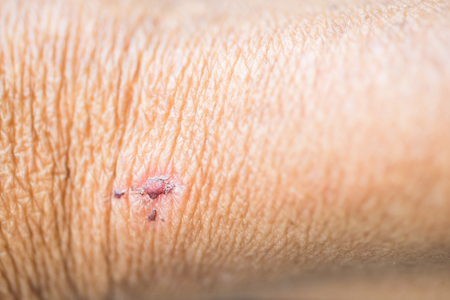 Problems of dry skin, wound, scabs