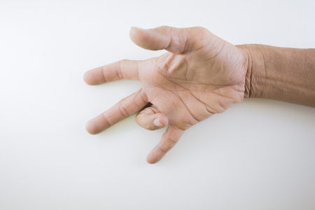 Finger of seniors who have problems trigger fingers. 免版税图像