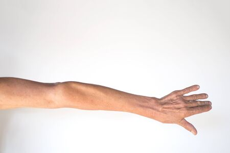 The muscles and joints of the arms of the elderly men with inflammation and deforming