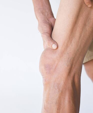Elderly hands holding legs in the area of the knee that is inflamed on a dark background