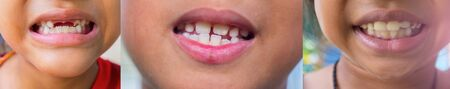 Many pictures of the teeth and gums of the child are deformed and many problems are unattractive. Stock Photo