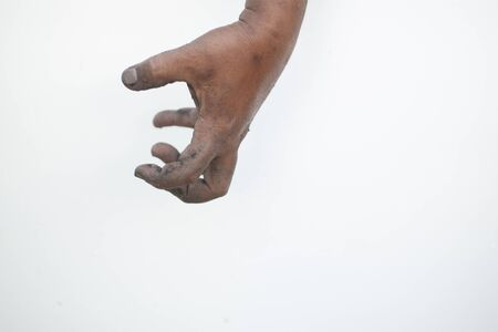 The dirty hands and fingers of the elderly show signs of holding objects. Stok Fotoğraf