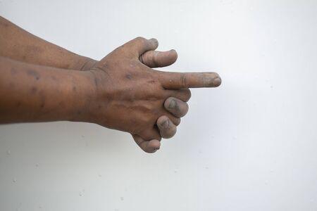 Dirty hand gesture gesture pointing finger Stock fotó