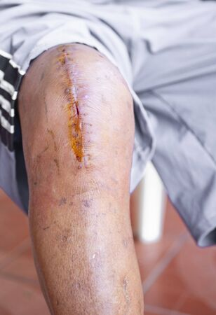 Photos of surgical wounds on the knees Banco de Imagens