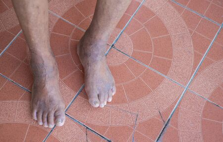 Skin diseases at the feet of the elderly