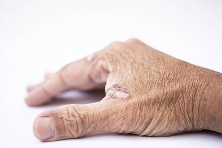 Skin marks on the hands of the elderly