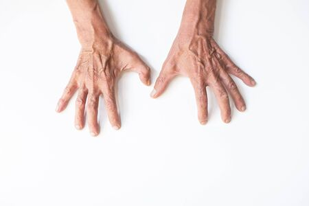 Both hands with clear blood vessels of the elderly on a white background Stock Photo