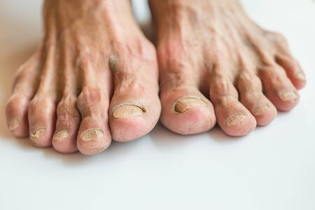 The toes and toes on both sides of the elderly deteriorated on a white background.