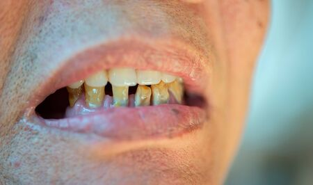 Old and worn-out elderly teeth