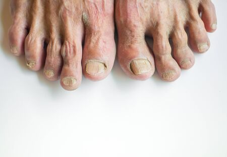 The skin and toenails of elderly people who are in disrepair, brittle on a white background