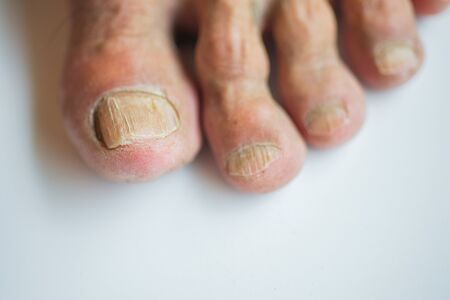 Nails at the feet of elderly people who are in disrepair, brittle Stock Photo