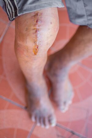 Wounds from the knee surgery of the elderly