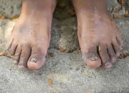 Toenail caused by a fungal infection caused by bacteria.